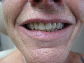 Denture after Correcting Smiles