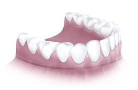 Dentures on Gums