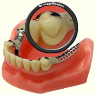 Partial-Denture-with-tooth-colored-clasp