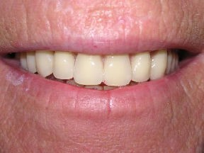 denture after Ceating More Natural Smiles