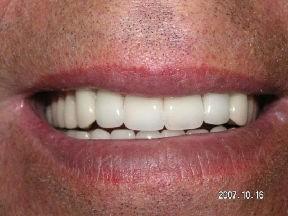 denture after Improving Your Smile