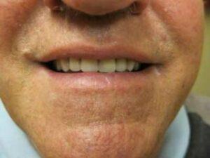denture after KO