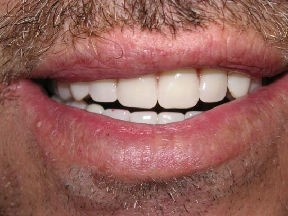 denture after Transforming Your Smile