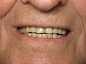denture before