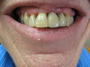 denture before Correcting Smiles