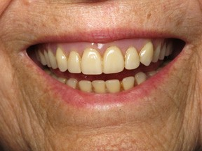 denture-before