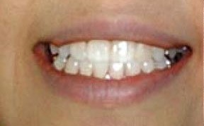 teeth whitening after